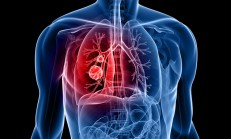 Akciğer Kanserinin Belirtileri ve Tedavisi