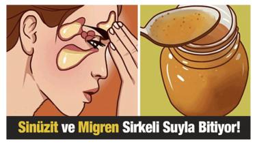 Sinüzit Ve Migren Sirkeli Suyla En Fazla 15 Günde Bitiyor !