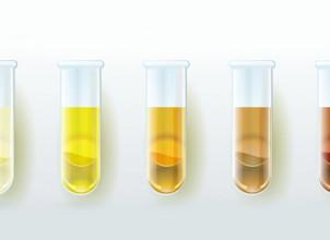 Bakın İdrar Renginiz Ne Anlama Geliyor Hangi İdrar Rengi Hangi Hastalığın Habercisi