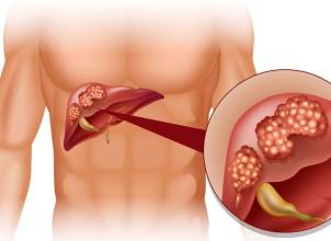 Karaciğer Kanserinin Belirtileri Nelerdir, Nasıl Anlaşılır?