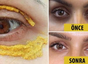 Sarı Maske Göz Altı Şişkinlik ve Koyuluklardan Kurtulun ! Değişime İnanamayacaksınız
