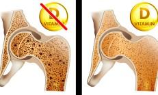 Vücudunuzun D Vitaminine İhtiyaç Duyduğunu Gösteren 8 Belirti